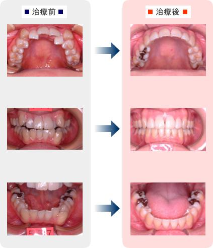 矯正 歯 変化 列 顔 の